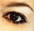 Auge (2)
